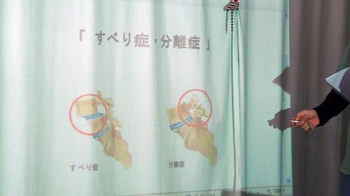 2011.9.11 腰下肢痛セミナーすべり症 UNITE