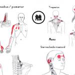 筋肉の触診とトリガーポイント