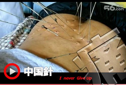 中国鍼にネバーギブアップ