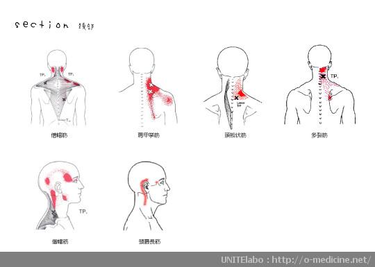 トリガーポイント section-neck