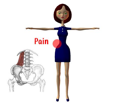 疼痛回避姿勢って?