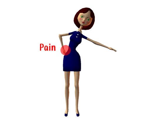 疼痛回避姿勢
