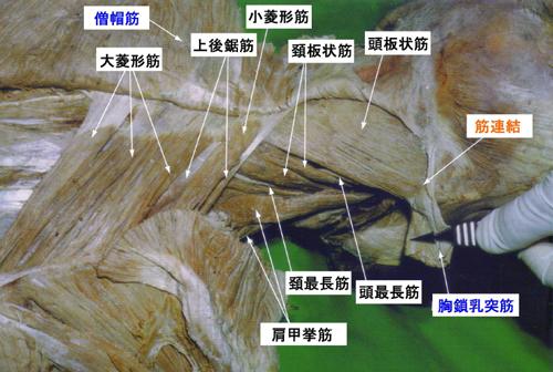 頚背部の触診