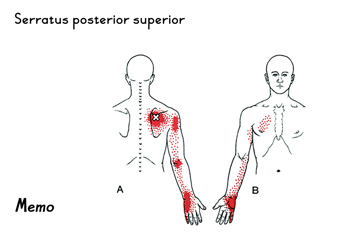 tp-Serratus-posterior-super